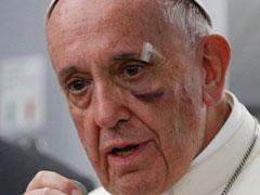アイキャッチ用 フランシスコ教皇ケガをする
